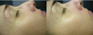 Collagen 90 II After 4 Treatments